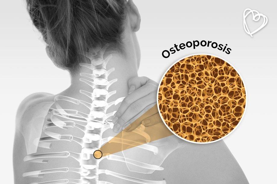 20 de octubre: Día Mundial de la Osteoporosis